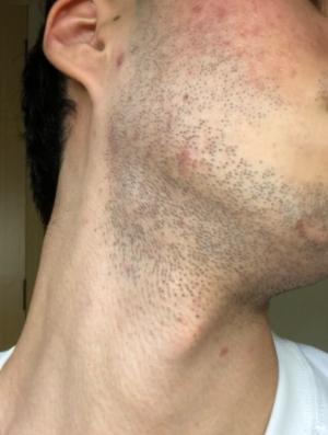 ひげ脱毛する前のひげ